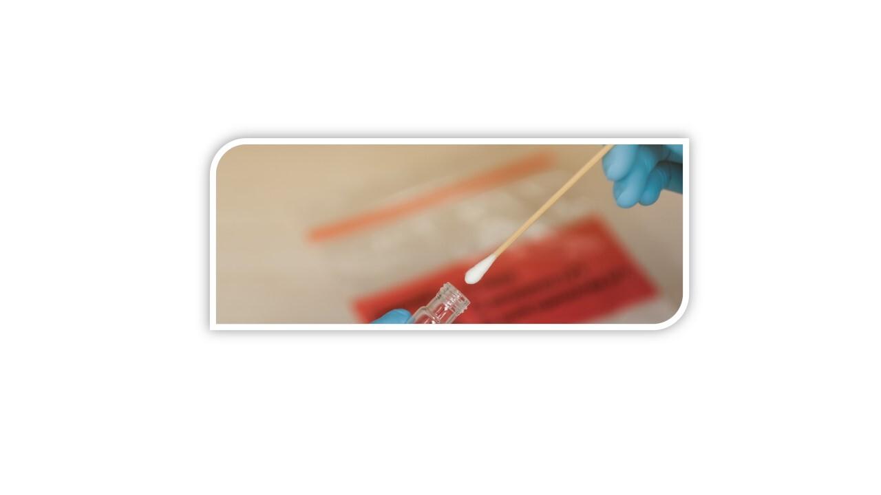 Testes PCR